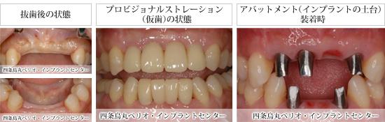 implant_52