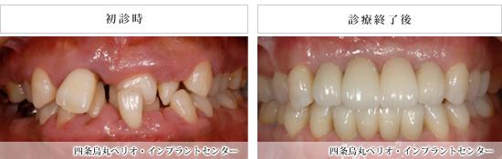 implant_53