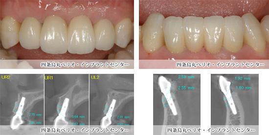 implant_55