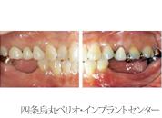 implant_23
