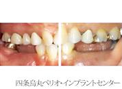 implant_24