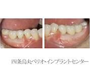 implant_26