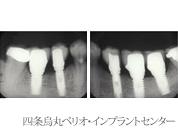 implant_27