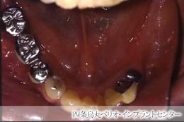 implant_42