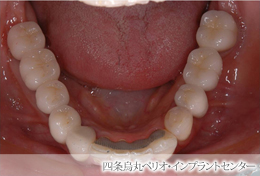implant_43