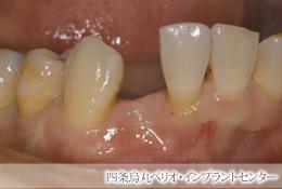implant_44
