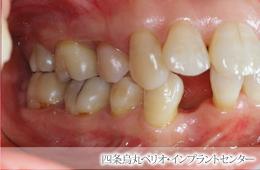 implant_45