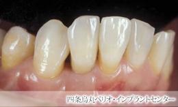 implant_46