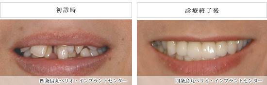 implant_54