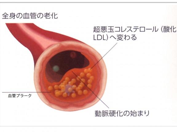 血管壁のプラークイラスト.022
